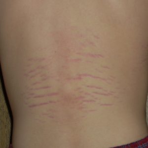 Bartonella: Not a tick-borne disease or Lyme coinfection