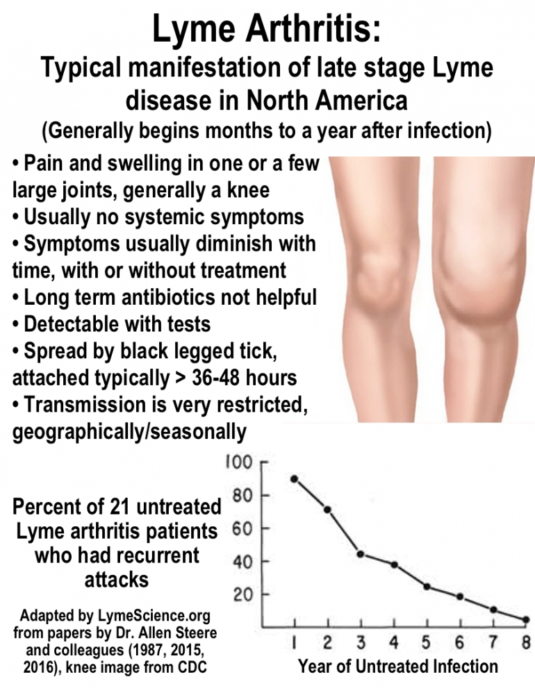 Lyme arthritis: typical manifestation of Lyme disease in North America